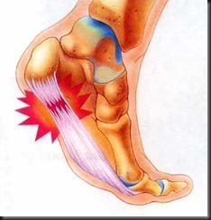 Foot-pain1